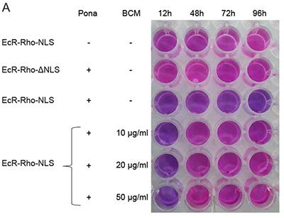 Des chercheurs du CBM ont mis au point des cellules-outils novatrices pour rechercher à haut débit de nouvelles molécules antibactériennes plus efficaces et plus spécifiques