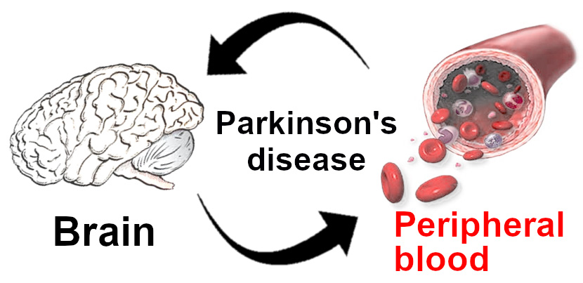 Disturbed expression of autophagy genes in blood of Parkinson's disease patients