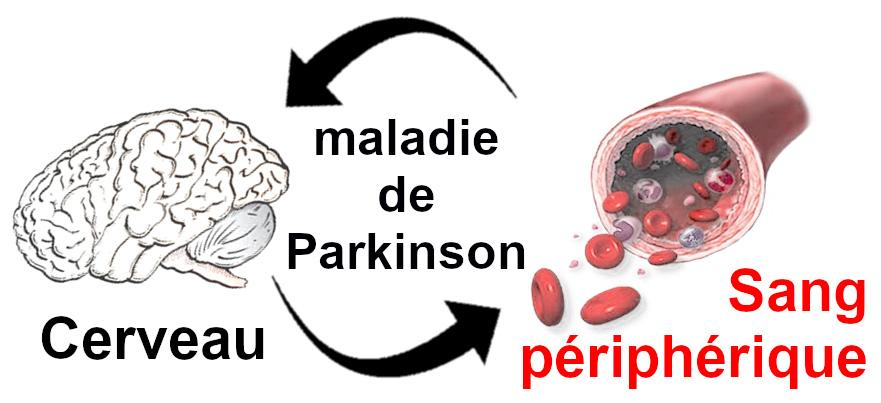Expression perturbée de gènes d'autophagie dans le sang de patients atteints de la maladie de Parkinson